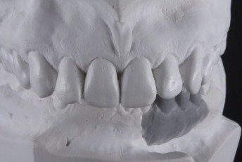 3. Articulated Waxed Models; Screw Retained Zirconia Implant Bridge