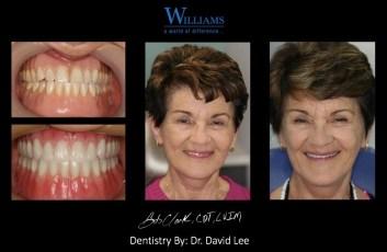 Strickland FOY™ Dentures by Dr. David Lee