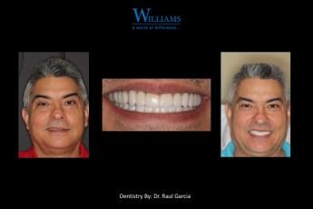 Full Mouth Rehabilitation by Dr.Raul Garcia