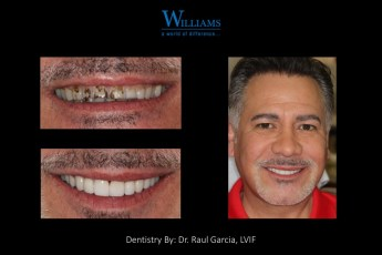 Smile Makeover by Dr.Raul Garcia