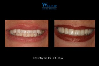 Full Arch Smile Makeover
