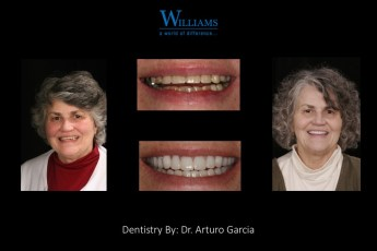 Combination Case by Dr. Arturo Garcia