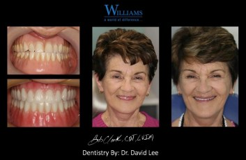 Strickland FOY™ Dentures by Dr. David Lee