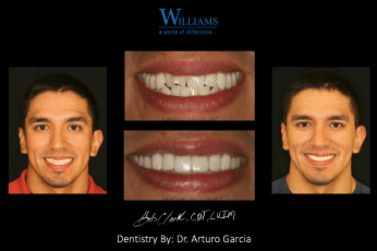 Smile Makeover with Veneers by Dr. Arturo Garcia