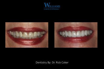 Veneers by Dr. Rick Coker