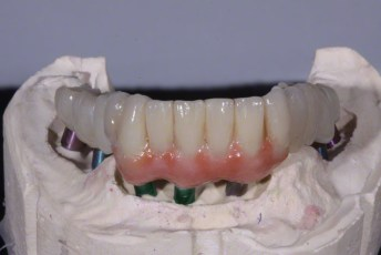 4.Zirconia Implant Bridge