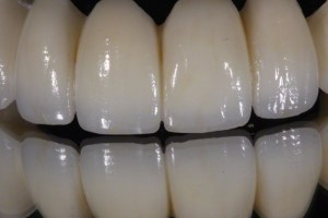 Zirconia-bridge-02