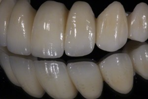 Zirconia-bridge-04