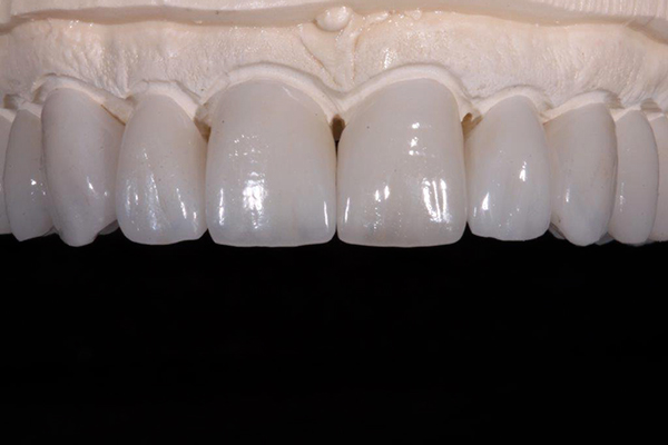 Ceramic Metal Free Dental Restorations