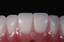 new-you-dentures-01