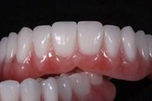 new-you-dentures-02