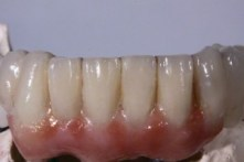 screw-retained-implant-denture6