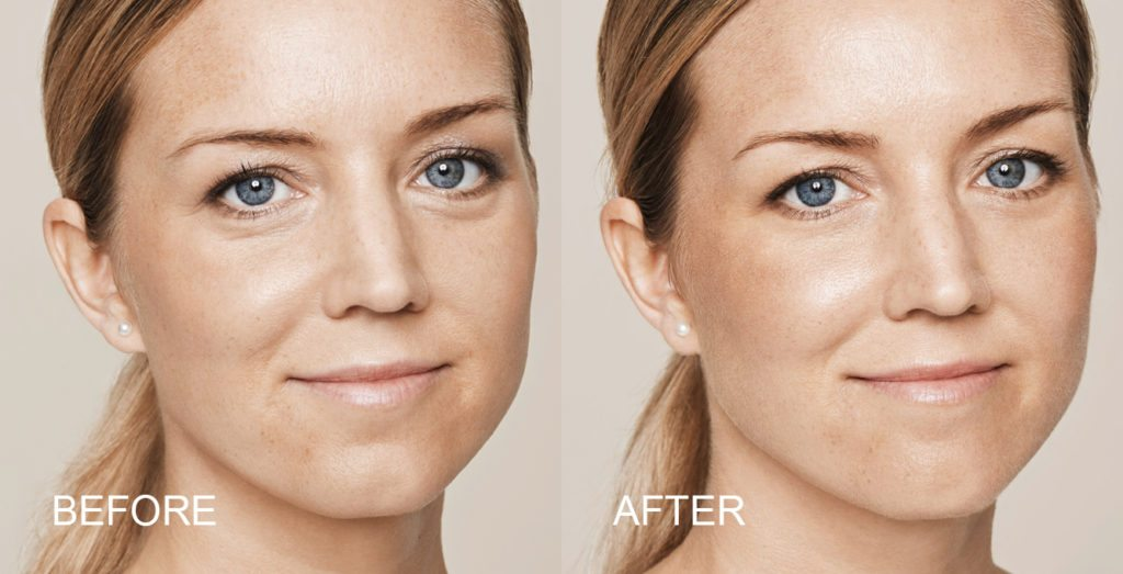 Dermal Fillers - Facial Aesthetics at Will Murphy Dentistry