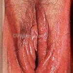 Vulvitis - or inflammation of the vulva. This picture also shows a mild case of candidiasis (thrush / yeast infection) in the vulval area. It is likely to be quite itchy and is easily treated with anti-fungal medication.