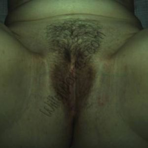 The woman in this pictures has shaved her genital hair and this shows some folliculitis or inflammation of the follicles from which the hairs grow. This will subside if left alone. Severe cases may require antibiotic therapy, but generally, just wash with salty water, keep the area dry and leave it alone. Check to rule out diabetes, though, as it is more common in women who have such a condition.