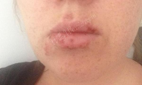 cold sore, nearly healed, oral herpes nearly healed, herpes outbreak on mouth