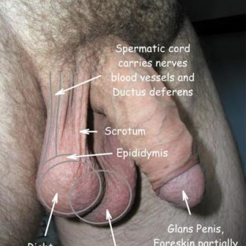 Photo showing normal healthy male genitalia and indicating the location of the following: spermatic cord, which carries nerves, blood vessels and Ductus deferen (vas deferens); scrotum; epididymis; right and left testicle/testis; glans penis, and foreskin partially retracted - also mons pubis and distribution and pattern of normal, healthy male body hair
