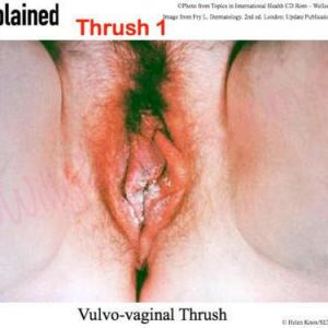 Vulvo-vaginal thrush or yeast infection (monilia or candida albicans)