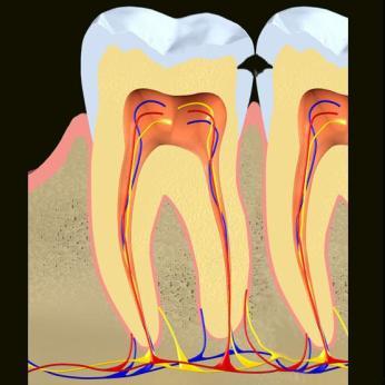 → Cárie Dentária: tudo o que você precisa saber