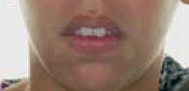 traumatismo dental selamento labial