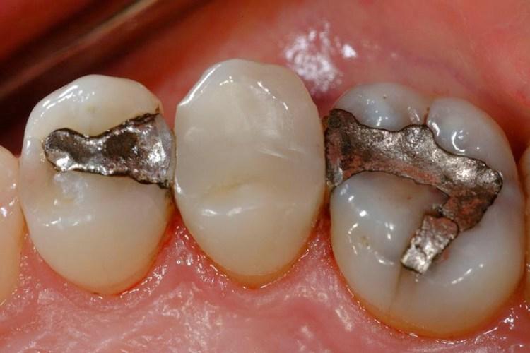 Restauração dentária de amálgama