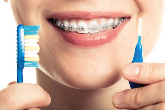como limpar o aparelho dentário fixo