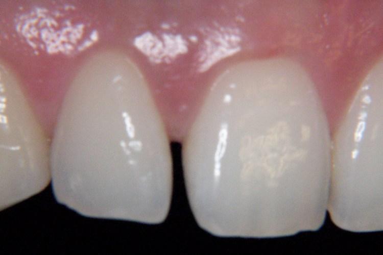 dente separado o que fazer