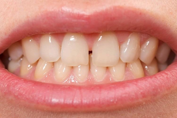 diastema espaço entre os dentes o que fazer
