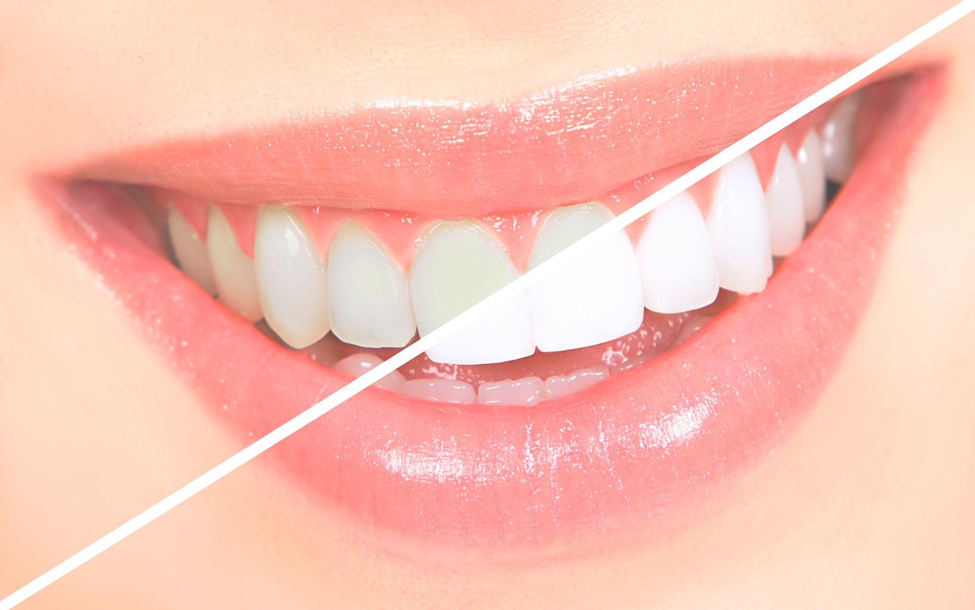 O Acafrao Clareia Os Dentes Mito Ou Verdade
