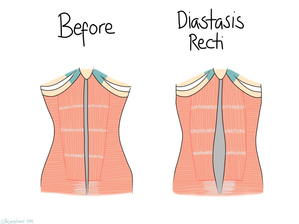 How diastasis recti affects the muscles of the abdominal wall