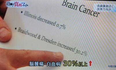 NHK真相:脳腫瘍・白血病30%以上増加