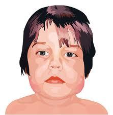 Mumps Information
