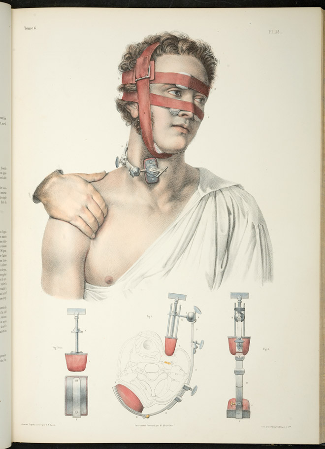 Complete Study of Human Anatomy
