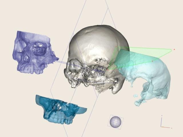 The Bizarre, Bony-Looking Future of Algorithmic Design
