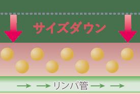 業務用痩身機イントラスイーパーのメカニズム3