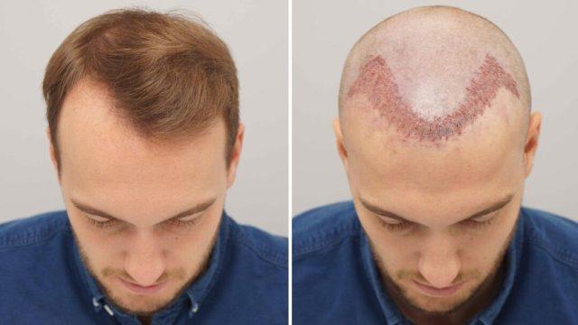 hair Hair Transplant