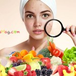 10 Really helpful foods to eliminate acne