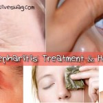 How to get rid of blepharitis? Treatment and Home Remedies