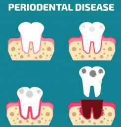 periodenal-disease