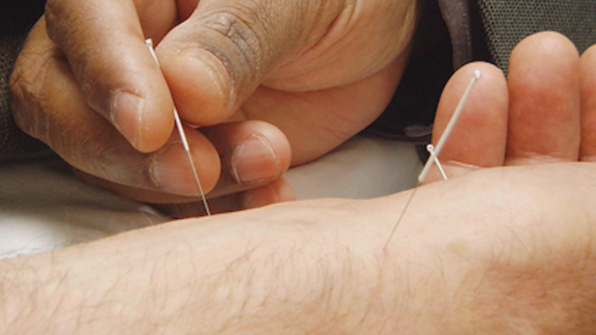 acupuncture_370195