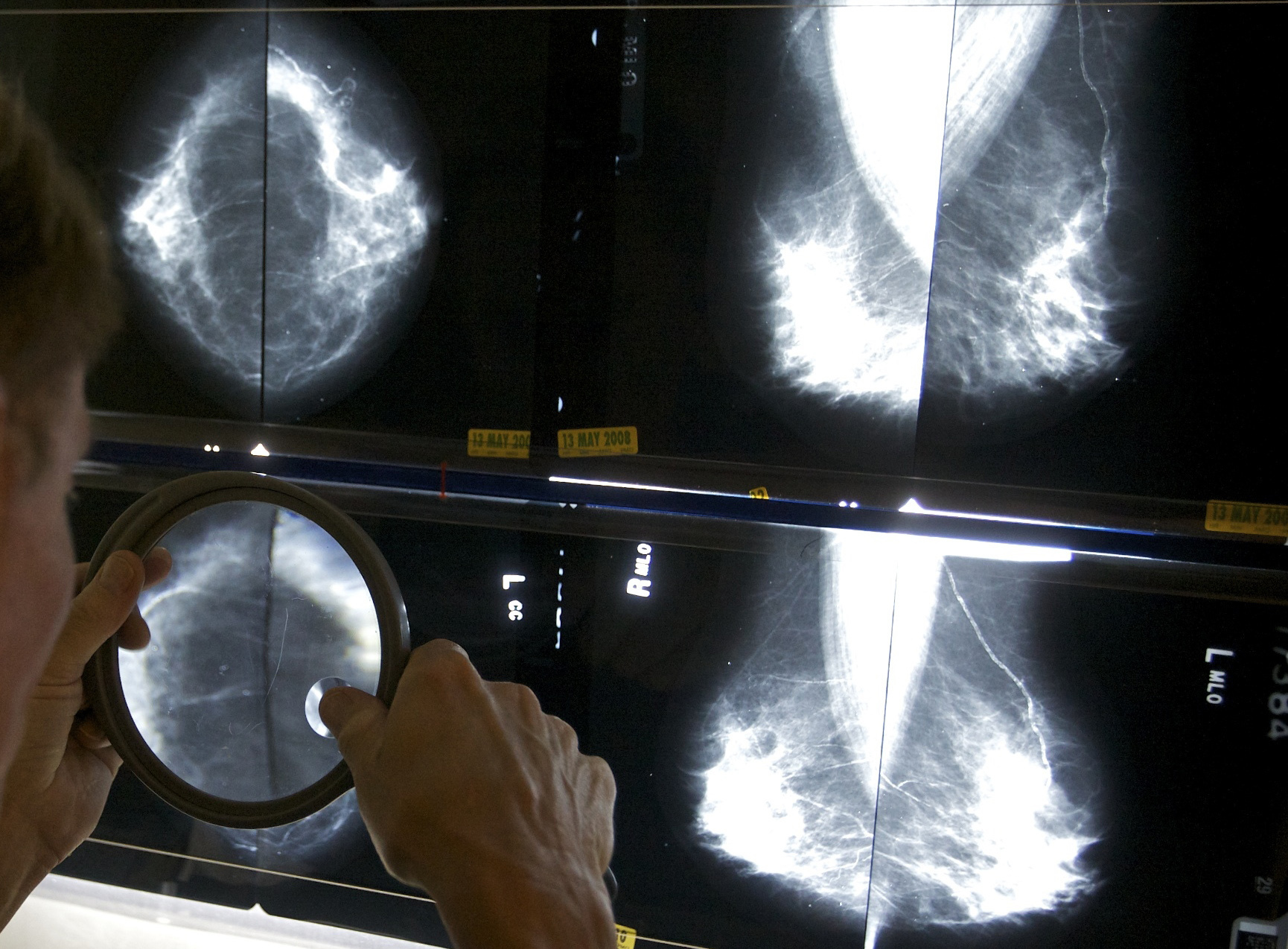 Mammograms_Standards_40501-159532.jpg75171724