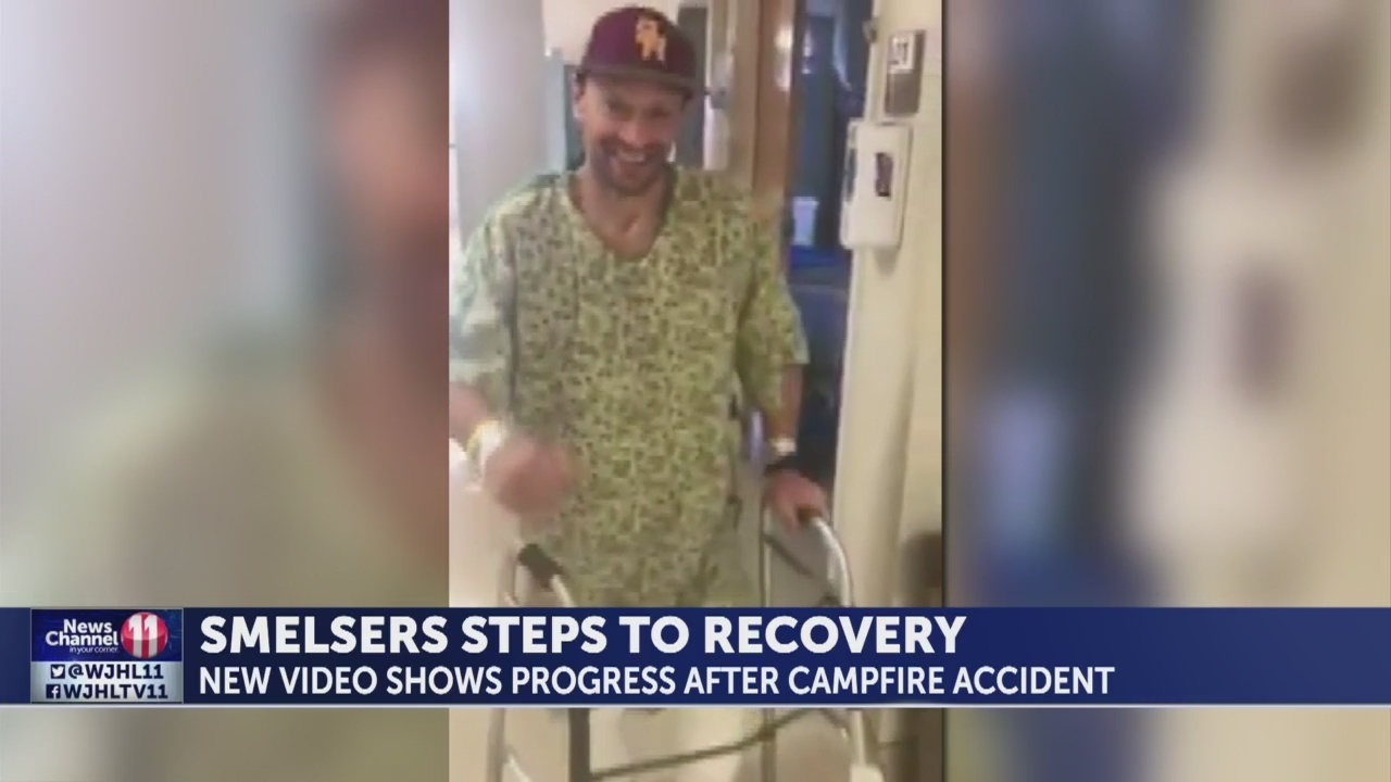 Video shows progress of local coach's recovery from burns