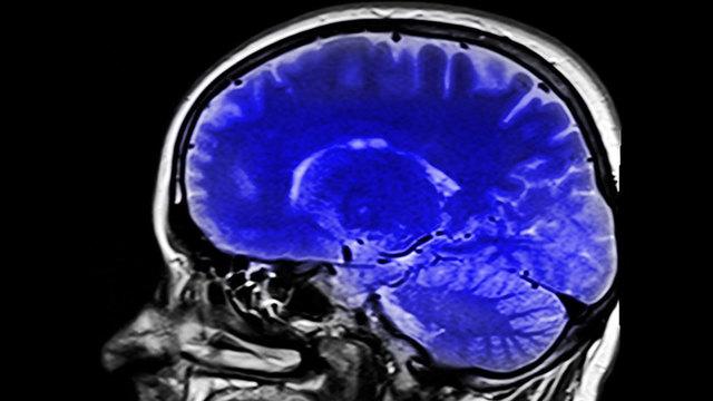 Brain generic