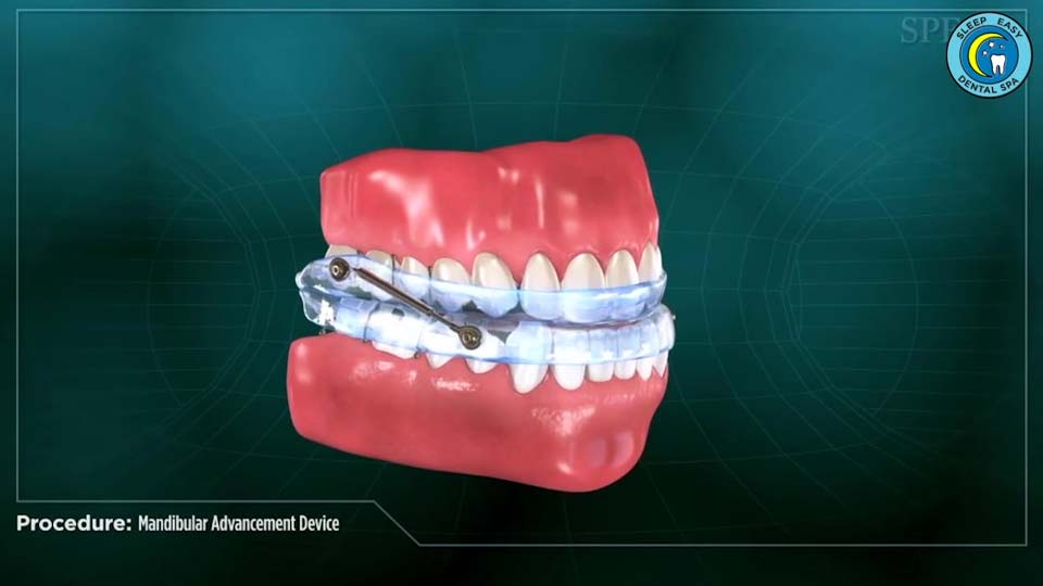Pristine Dental - Treating Sleep Apnea Chat