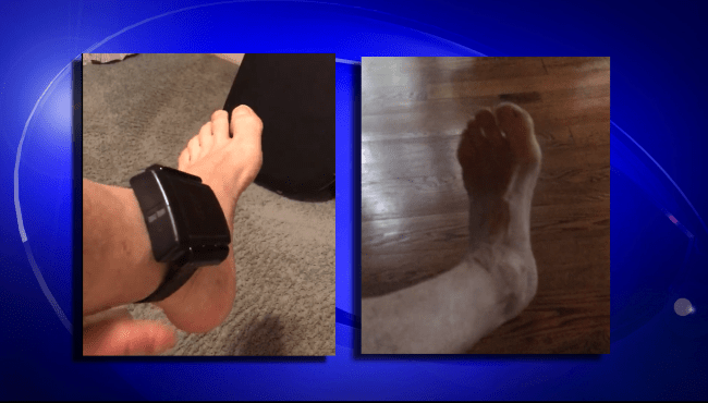 Ankle Monitor_390910
