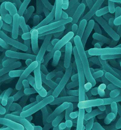 Listeriabacteria_39307