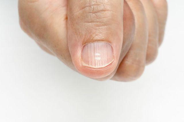 О каких проблемах со здоровьем расскажут ногти