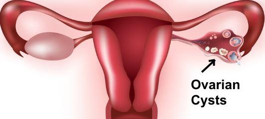 Κύστες στην ωοθήκη: αθώες ή ύποπτες; Πώς θα τις αντιμετωπίσω;