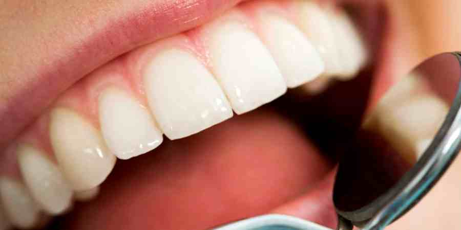 Questions To Ask When Choosing A Cosmetic Dentist - Woman of Style ...