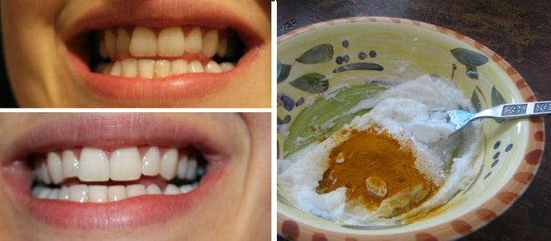 This Turmeric Paste Kills Bacteria Cures Gum Diseases And